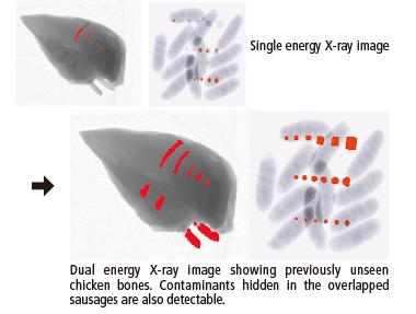 Parasta_vs_duala_rentgeniekarta